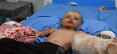 kurdish_child_probably_hit_by_chemical_ammunitionhawarnews__ef_screenshot_400