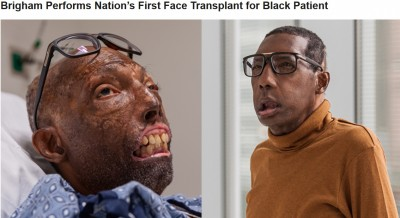 usa_boston__brigham_hospital__transplants__phace.._400